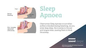 sleep apnoea
