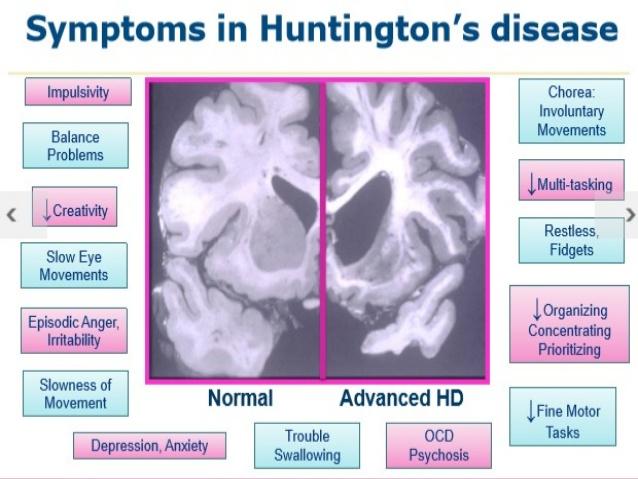 huntingtons-disease-6-638